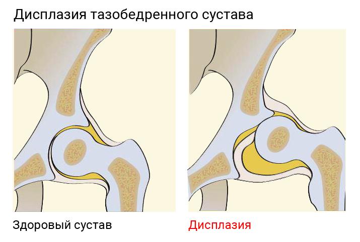 Дисплазия бедренного сустава разрыв фиброзной губы плечевого сустава лечение