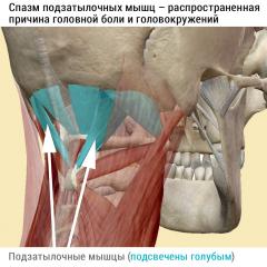 Подзатылочные мышцы