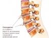 Spondilez_Osteofity