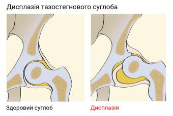 Дисплазія тазостегнового суглоба