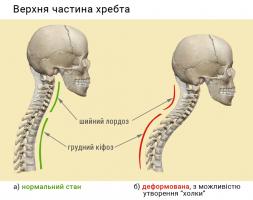 Верхня частина хребта