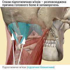 Підпотиличні м'язи