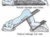 Альтернативний метод постурального дренажу